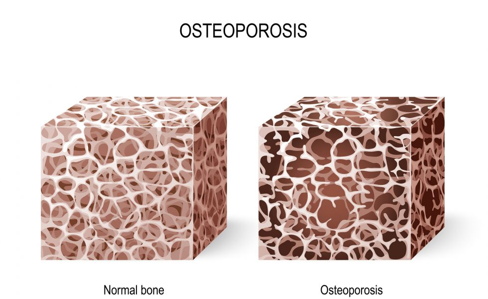 Bone health. Osteoporosis. Vector illustration for your design and medical use. Different views of a bone tissue (normal and osteoporosis). Disease of bones that leads to an increased risk of fracture. Cross section. Human anatomy.